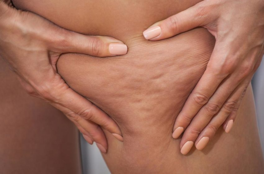 Check about cellulite causes, treatments, and other aspects