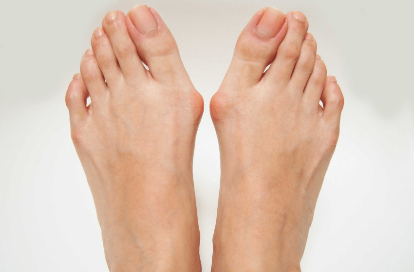 What are bunions and the Causes of bunions?
