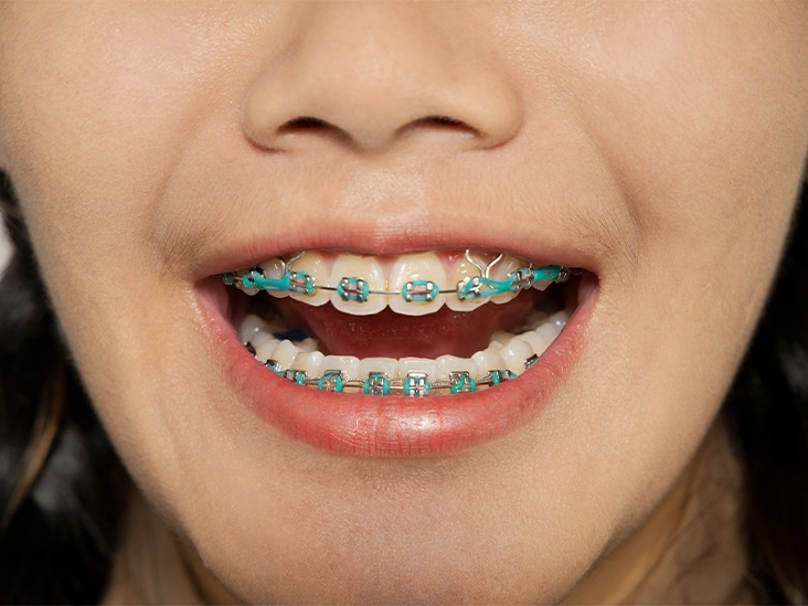 Orthodontist Treatment For A Perfect Pair Of Teeth